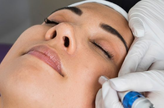 Advanced Skin Needling Course – 1 Day